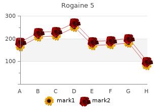 safe rogaine 5 60  ml